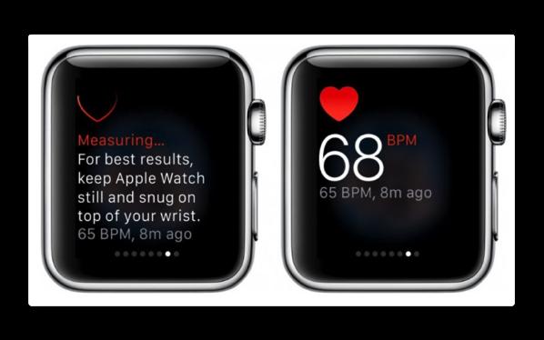 Apple、Apple Watchは心臓の異常を検出できるかどうかをテストしています