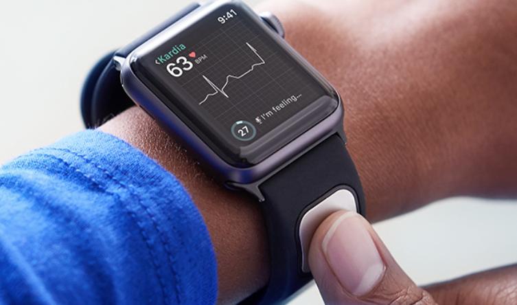 Apple、Apple Watch用の組み込み心電図モニターを開発中