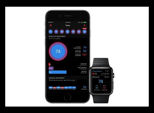【iPhone】Apple Watchの心拍数をわかりやすく表示「HeartWatch」(その2 正常&ワークアウト心拍数)