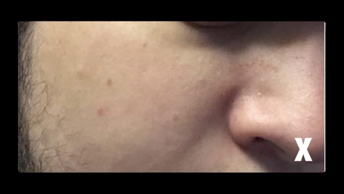 Skin smoothing 001