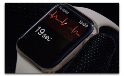 Apple Watchが心室収縮を早期発見し医師を感動、目覚ましの振動は聴覚障害者の称賛を受ける