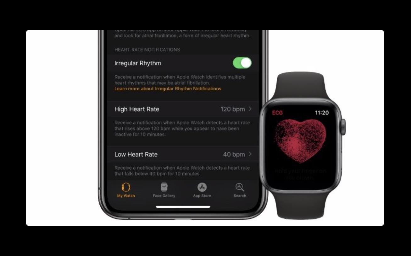 Apple Watch Series 4でECG機能が利用できるすべての国のリスト