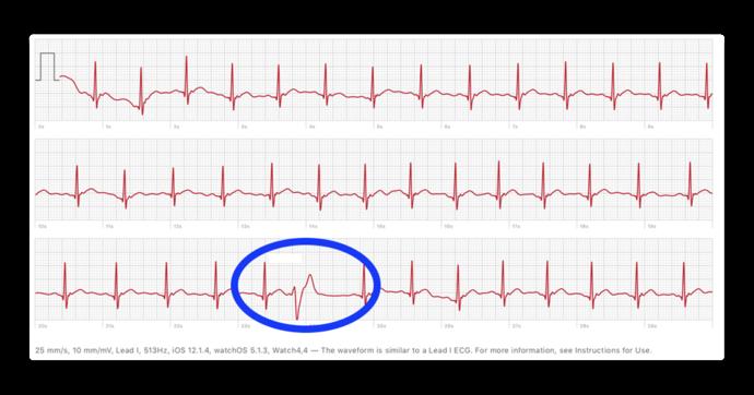 Premature ventricular 00001