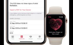 ヨーロッパでECG機能が開始された後、致命的な心臓病を発見し命を救ったとの報告