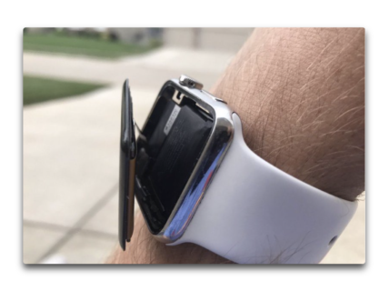 Apple、Apple Watchesの電池の膨れで訴訟に直面しています