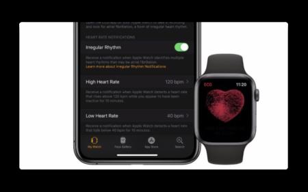 Apple、新しい脳卒中研究でジョンソン・エンド・ジョンソンと協力