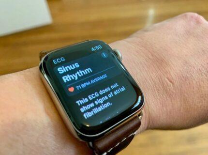 Apple、ECG機能に焦点を当てた新しいAppleWatch Series 6の広告をまもなく公開