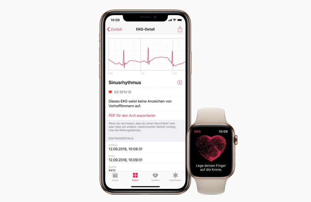 Appleが説明する「心電図アプリケーション」と「不規則な心拍の通知プログラム」の使用説明
